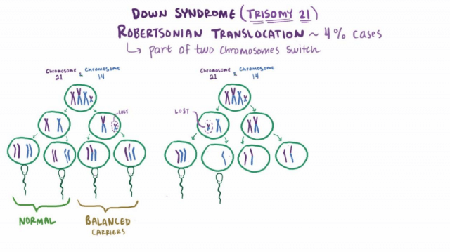 down syndrome trisomy 21
